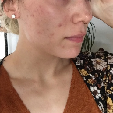 Before routine but after most acne